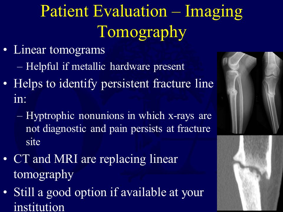 Patient Evaluation – Imaging Tomography
