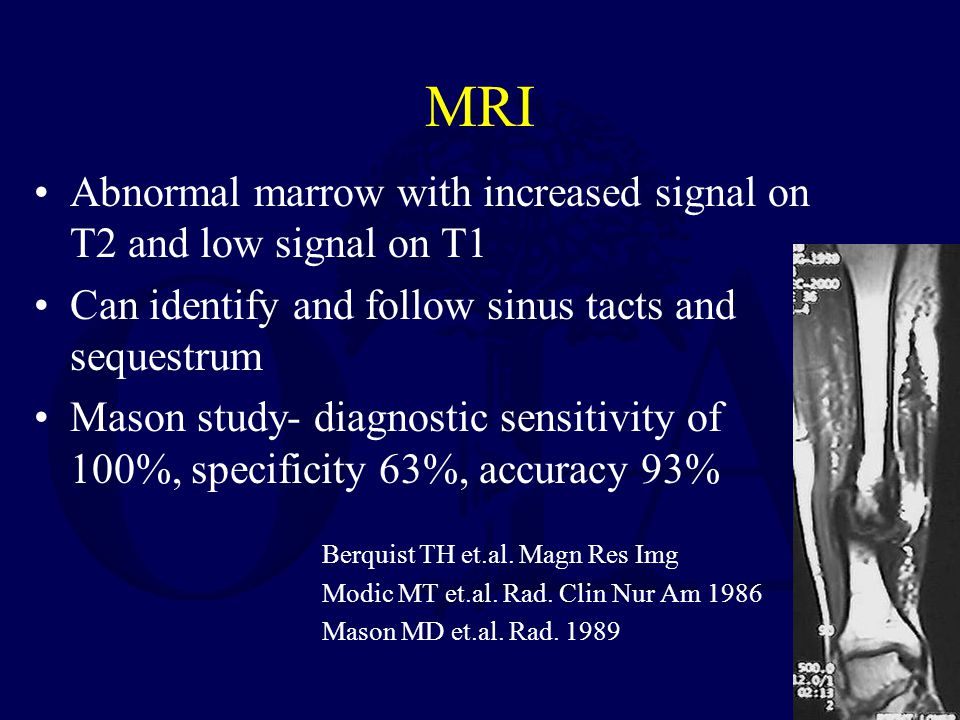 MRI Abnormal marrow with increased signal on T2 and low signal on T1