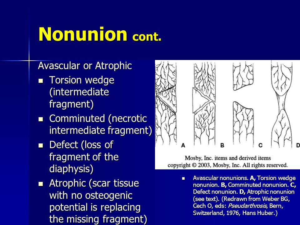Nonunion cont. Avascular or Atrophic