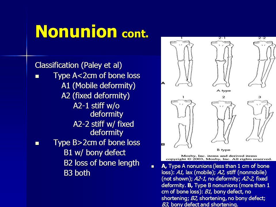 Nonunion cont. Classification (Paley et al) Type A<2cm of bone loss