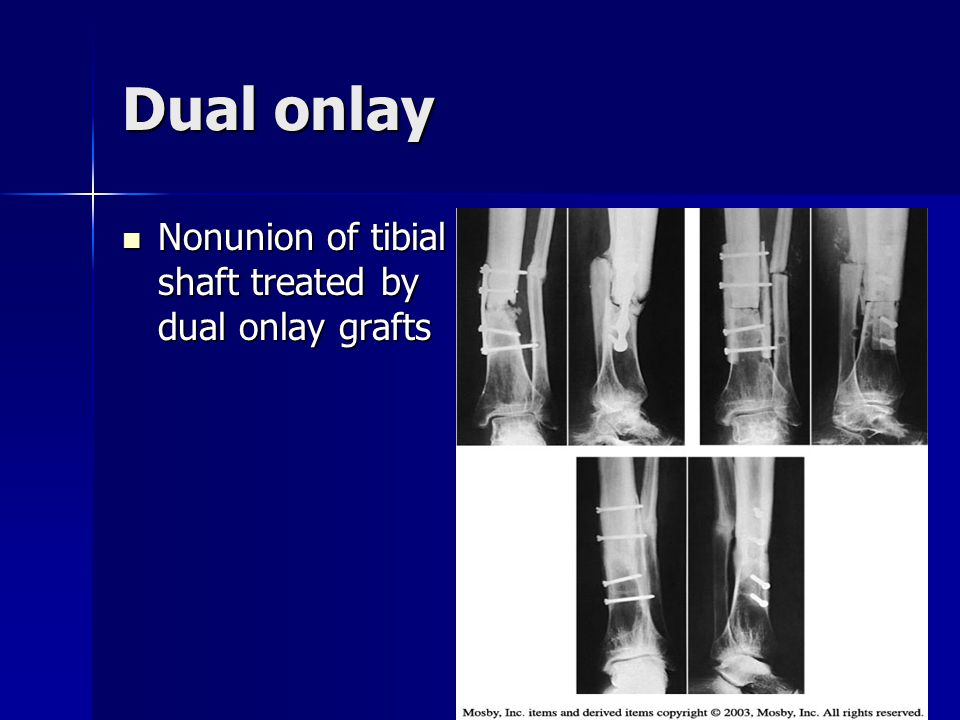 Dual onlay Nonunion of tibial shaft treated by dual onlay grafts