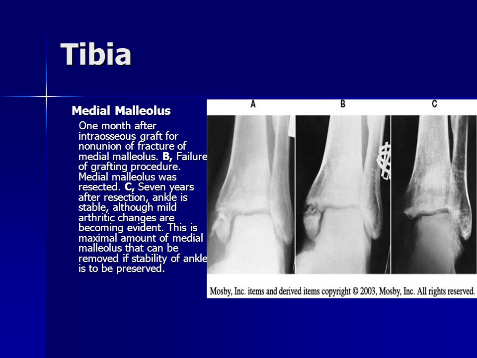 Tibia Medial Malleolus