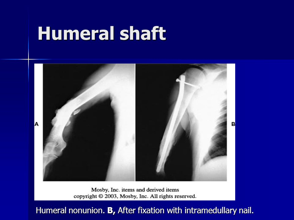 Humeral shaft Humeral nonunion. B, After fixation with intramedullary nail.