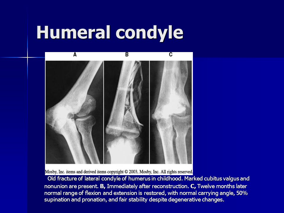Humeral condyle