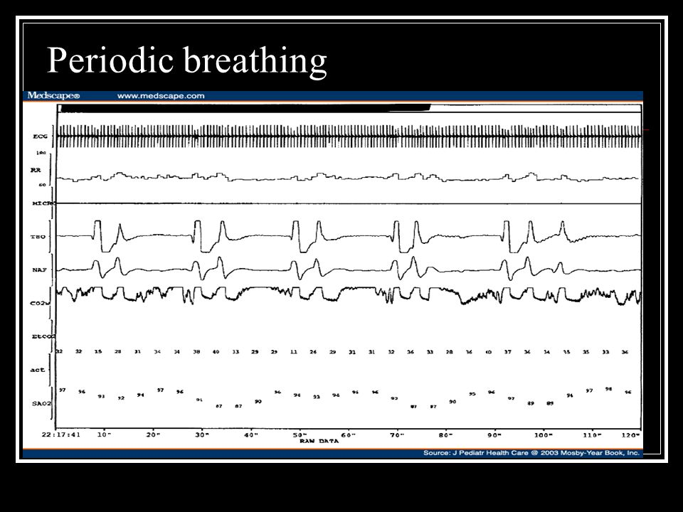 Periodic breathing This pt with arnold chiari