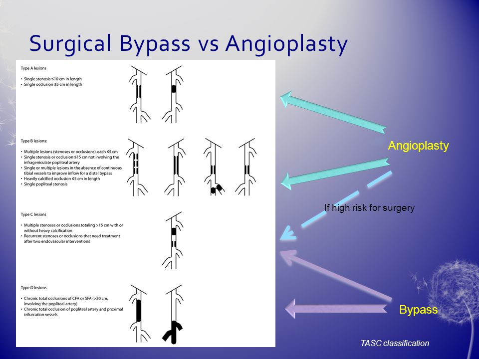 Surgical Bypass vs Angioplasty