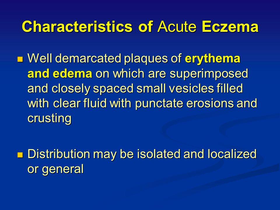 Characteristics of Acute Eczema