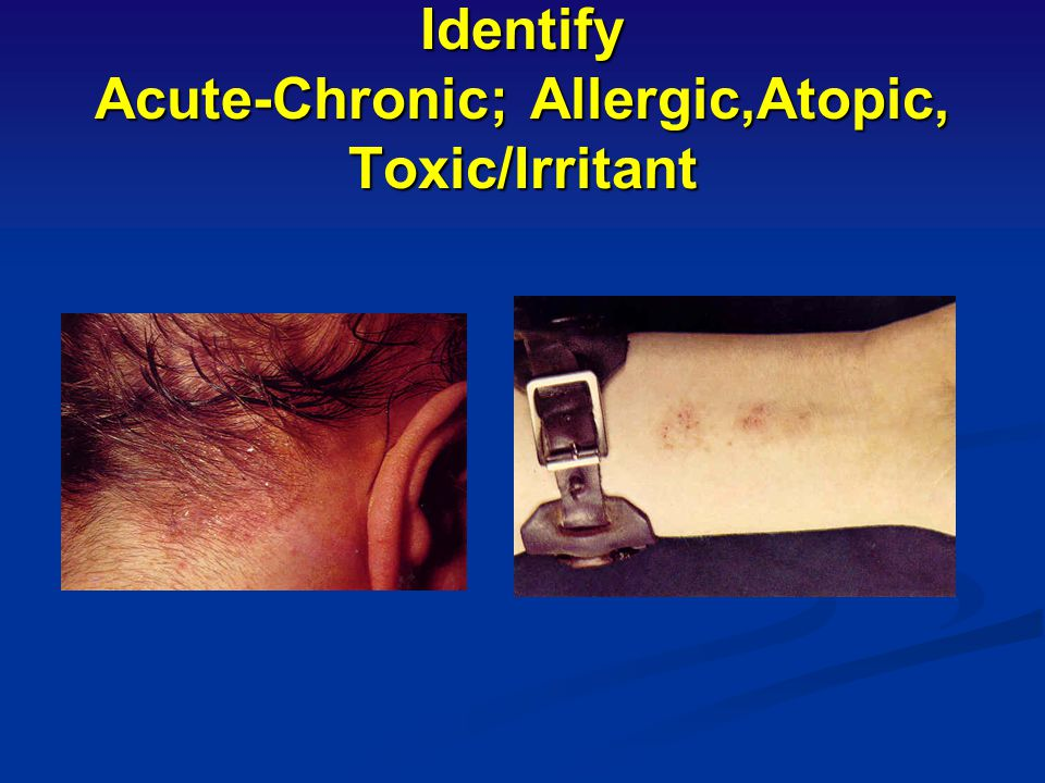 Identify Acute-Chronic; Allergic,Atopic, Toxic/Irritant