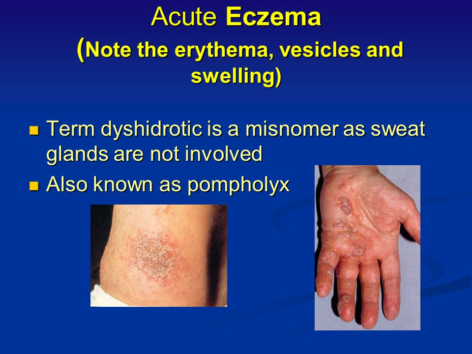 Acute Eczema (Note the erythema, vesicles and swelling)