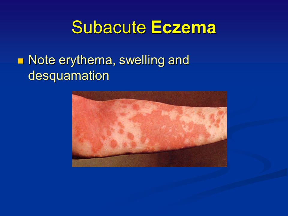 Subacute Eczema Note erythema, swelling and desquamation