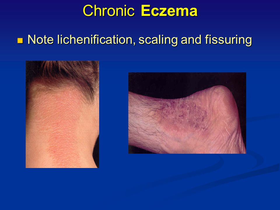 Chronic Eczema Note lichenification, scaling and fissuring
