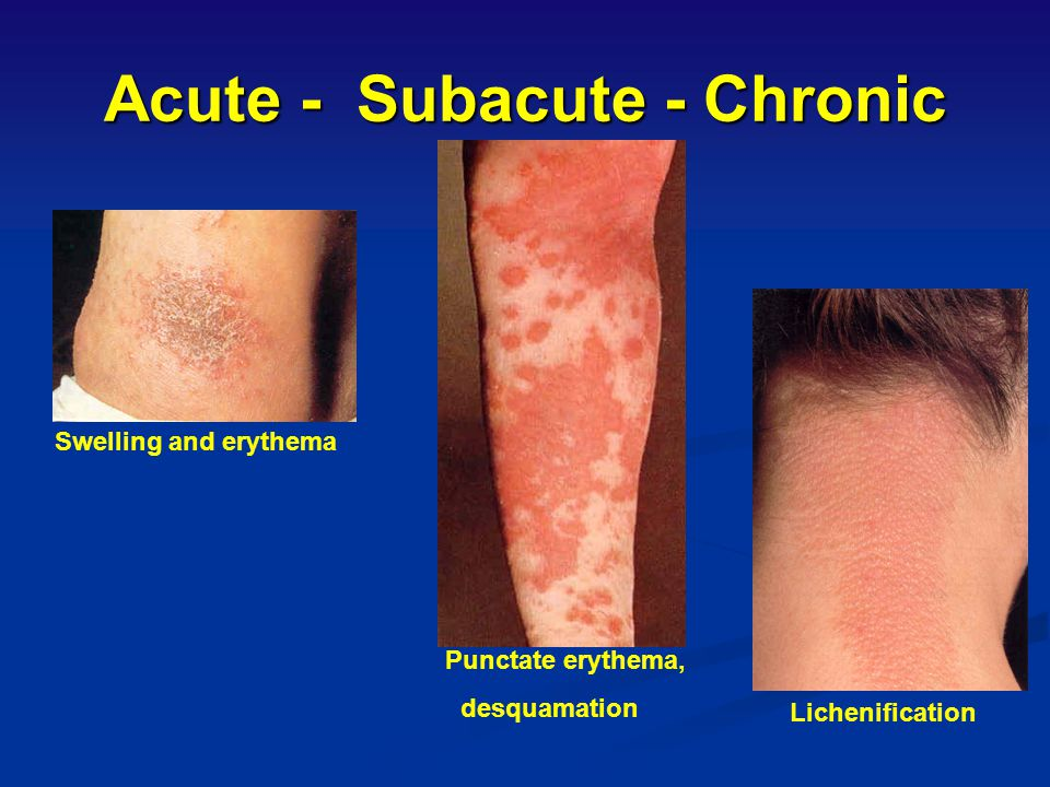 Acute - Subacute - Chronic