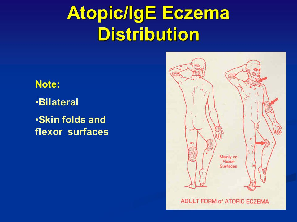 Atopic/IgE Eczema Distribution