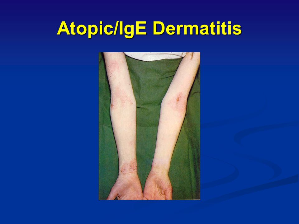 Atopic/IgE Dermatitis