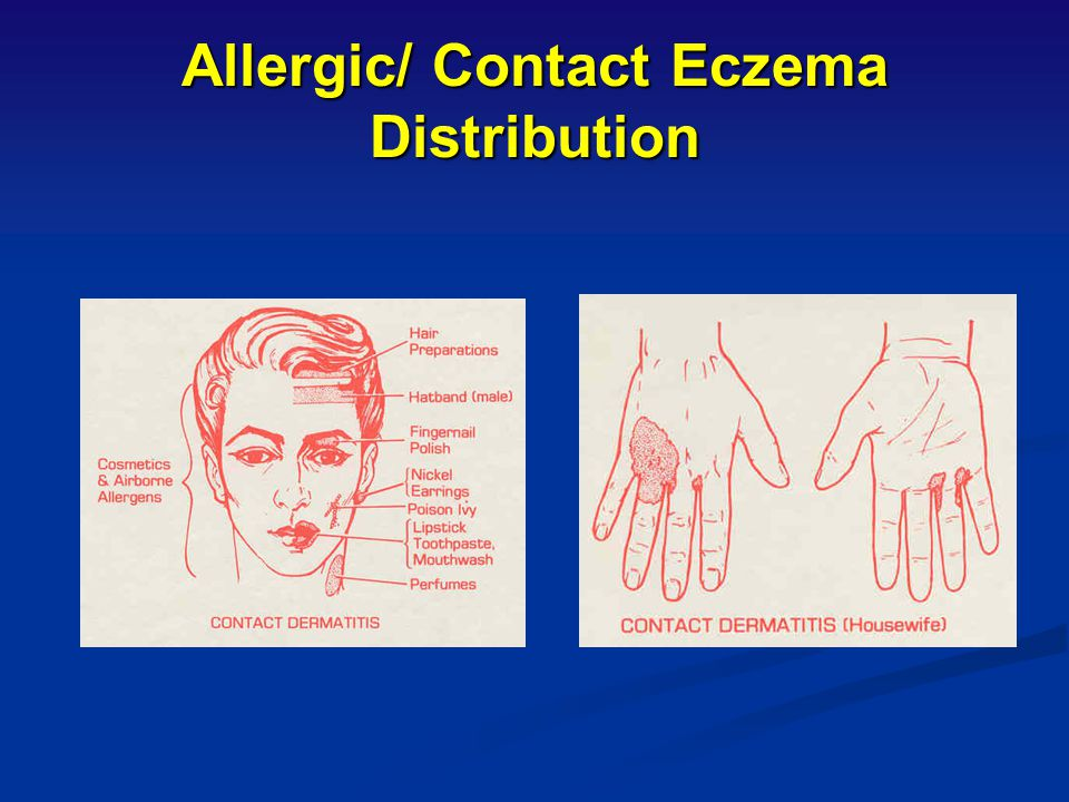 Allergic/ Contact Eczema Distribution