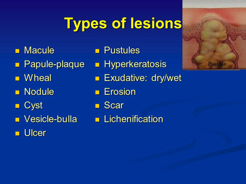 Types of lesions Macule Papule-plaque Wheal Nodule Cyst Vesicle-bulla