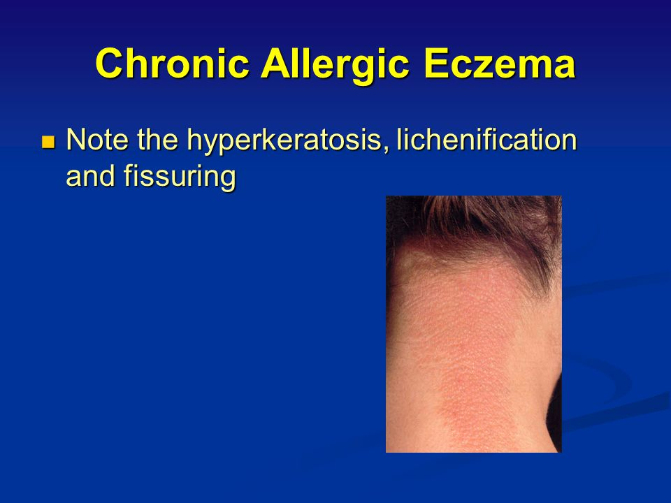 Chronic Allergic Eczema