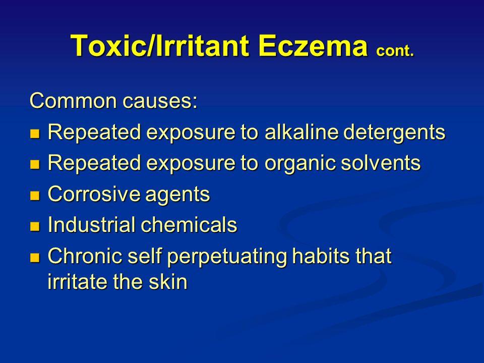Toxic/Irritant Eczema cont.