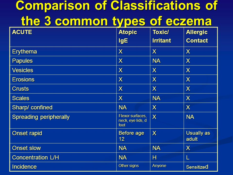 Comparison of Classifications of the 3 common types of eczema