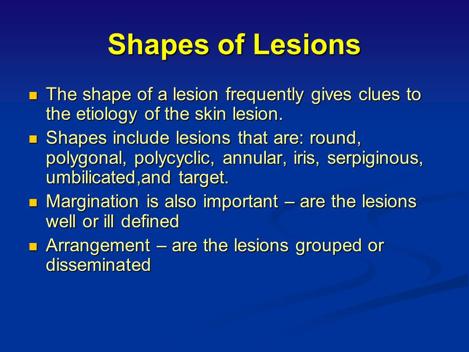 Shapes of Lesions The shape of a lesion frequently gives clues to the etiology of the skin lesion.