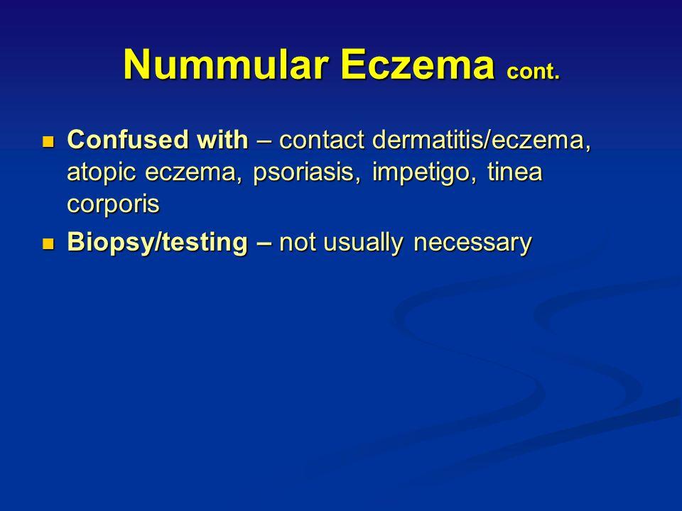 Nummular Eczema cont. Confused with – contact dermatitis/eczema, atopic eczema, psoriasis, impetigo, tinea corporis.