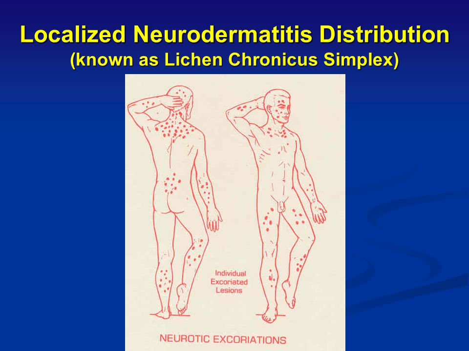 Localized Neurodermatitis Distribution (known as Lichen Chronicus Simplex)