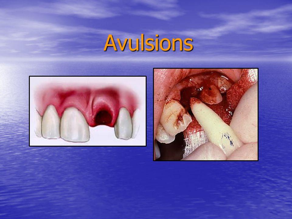 Avulsions