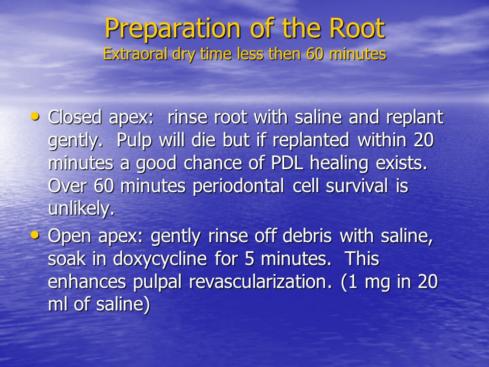 Preparation of the Root Extraoral dry time less then 60 minutes