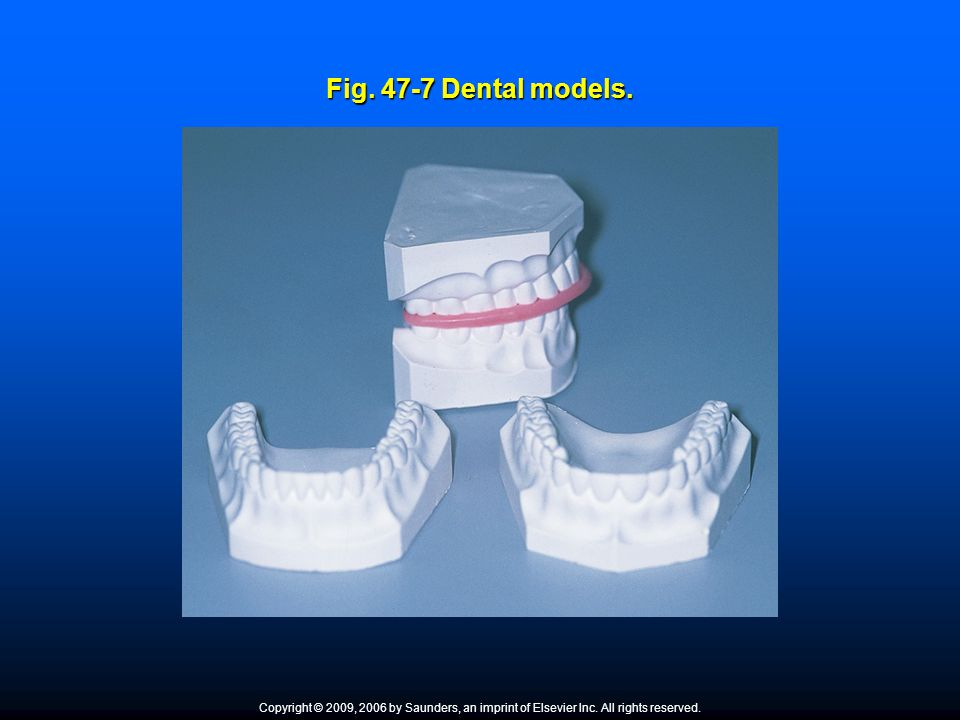 Fig. 47-7 Dental models. What type of impression material is used to obtain these study models