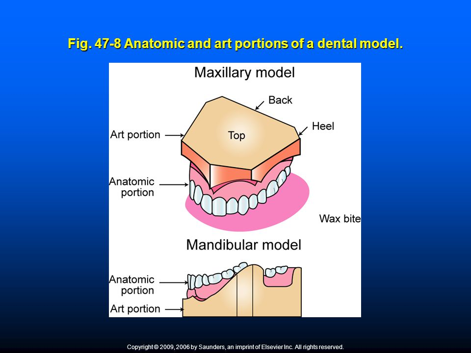 Fig. 47-8 Anatomic and art portions of a dental model.