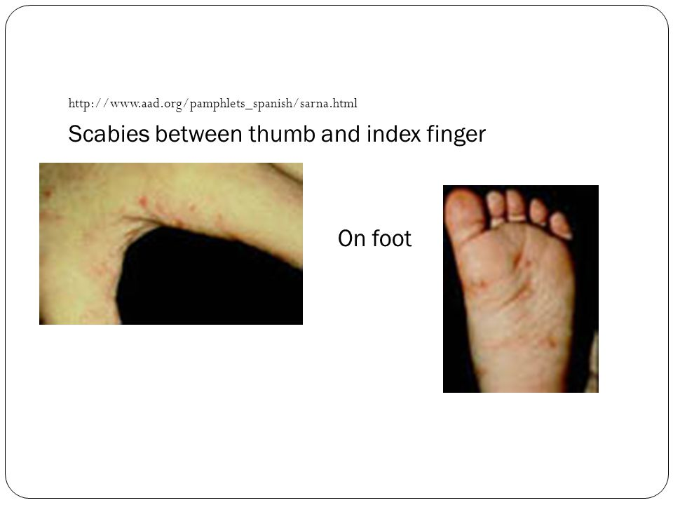 Scabies between thumb and index finger