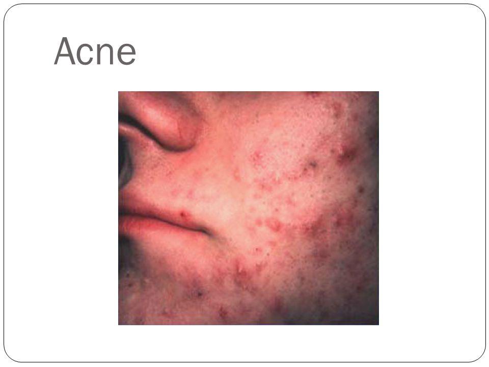 Acne http://www.pathology.iupui.edu/drhood/acne.html ACNE