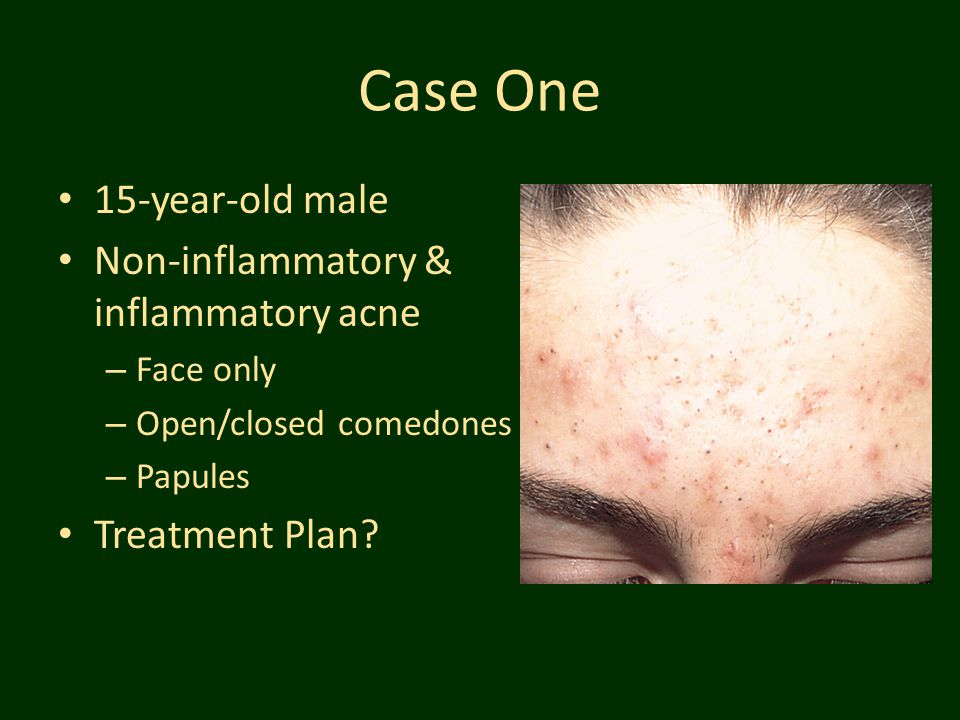 Case One 15-year-old male Non-inflammatory & inflammatory acne