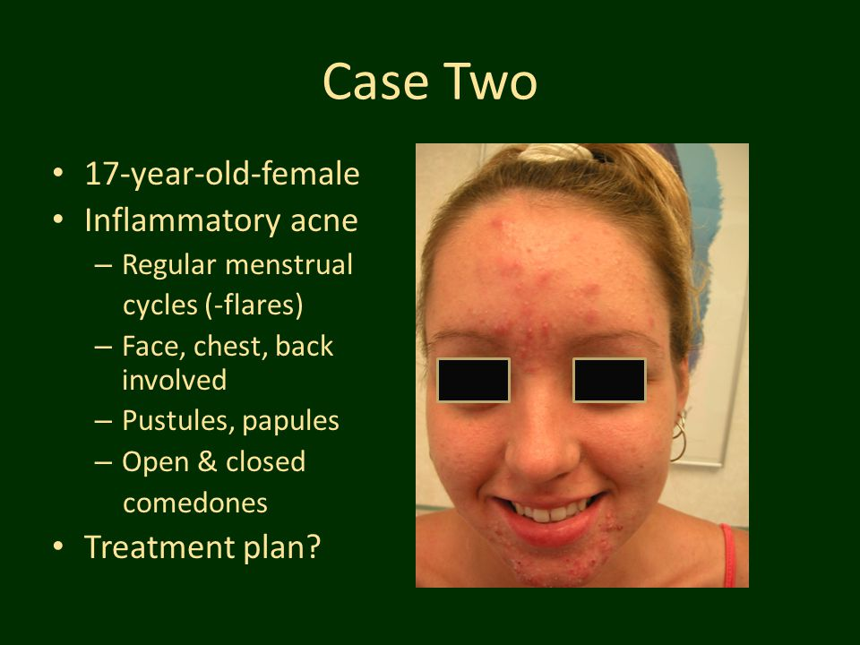 Case Two 17-year-old-female Inflammatory acne Treatment plan
