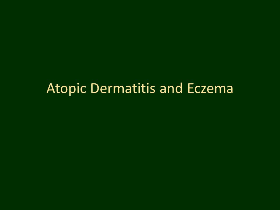 Atopic Dermatitis and Eczema