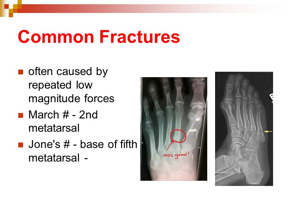 Common Fractures often caused by repeated low magnitude forces