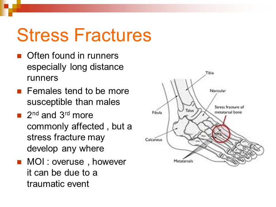 Stress Fractures Often found in runners especially long distance runners. Females tend to be more susceptible than males.
