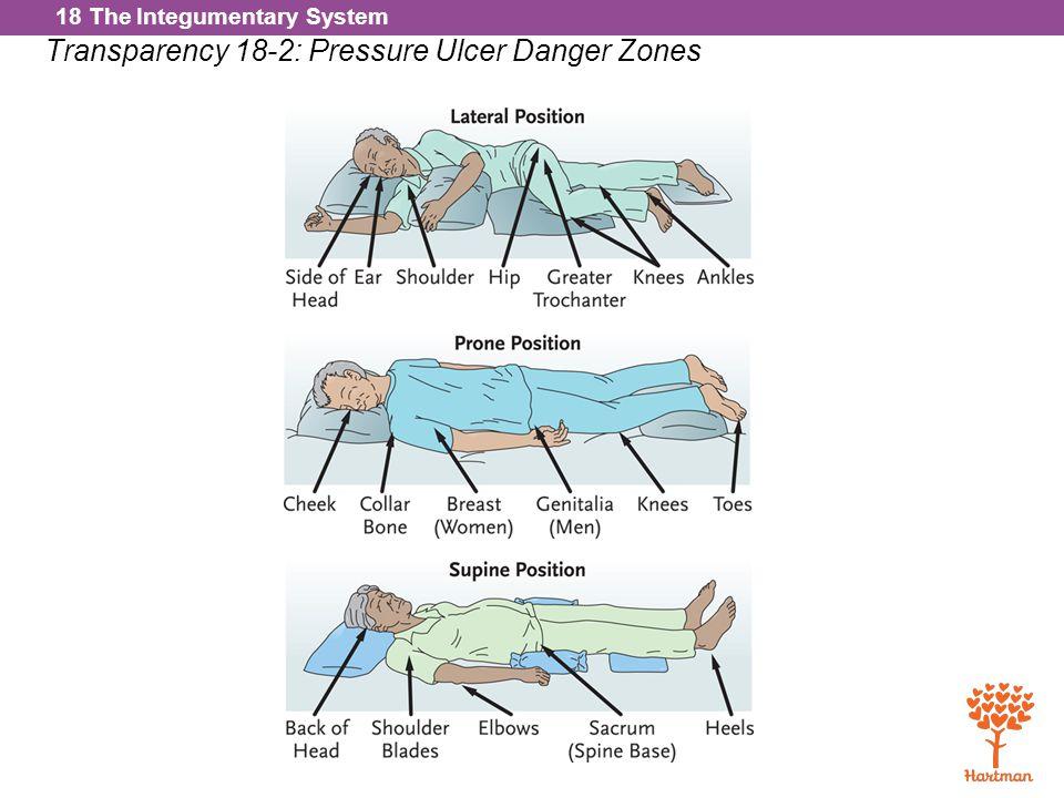 Transparency 18-2: Pressure Ulcer Danger Zones