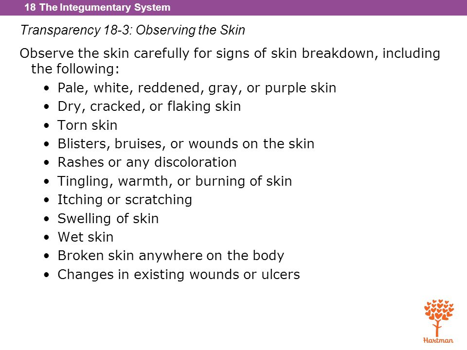 Transparency 18-3: Observing the Skin