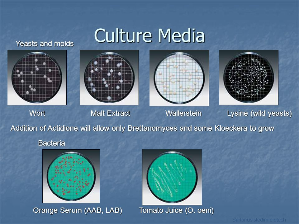 Culture Media Yeasts and molds
