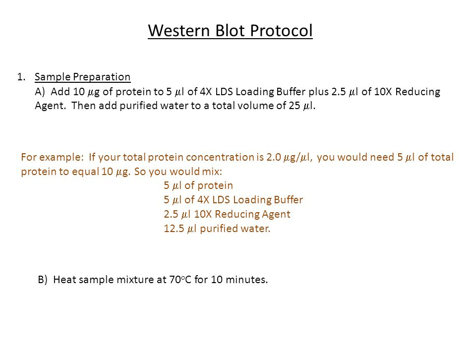 Western Blot Protocol Sample Preparation