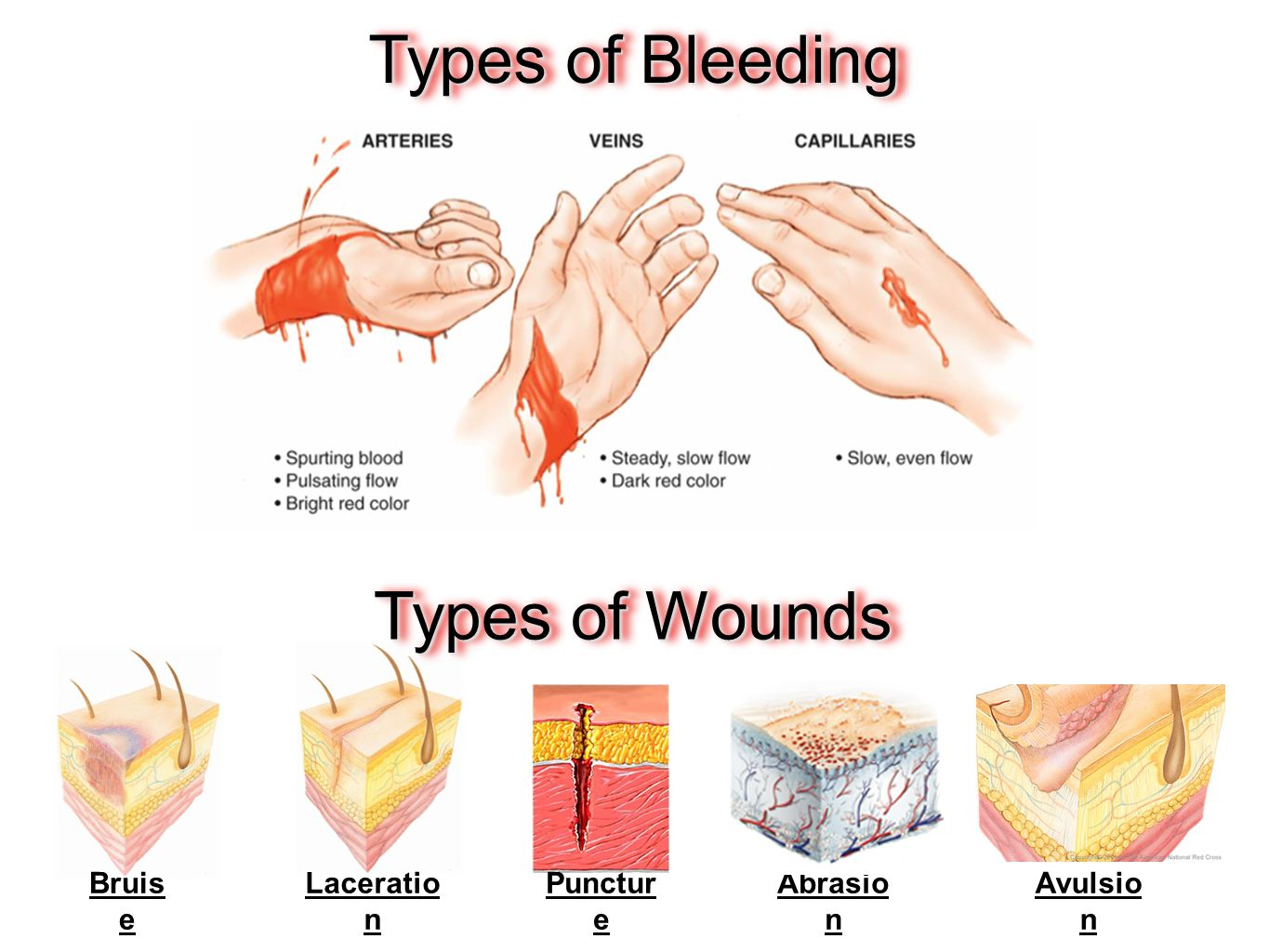 Types of Bleeding Types of Wounds Bruise Laceration Puncture Abrasion