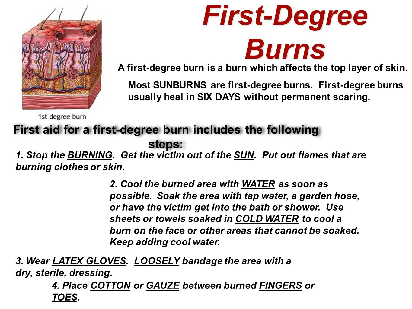 First-Degree Burns A first-degree burn is a burn which affects the top layer of skin.
