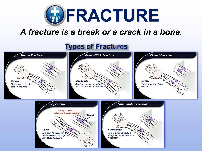 A fracture is a break or a crack in a bone.