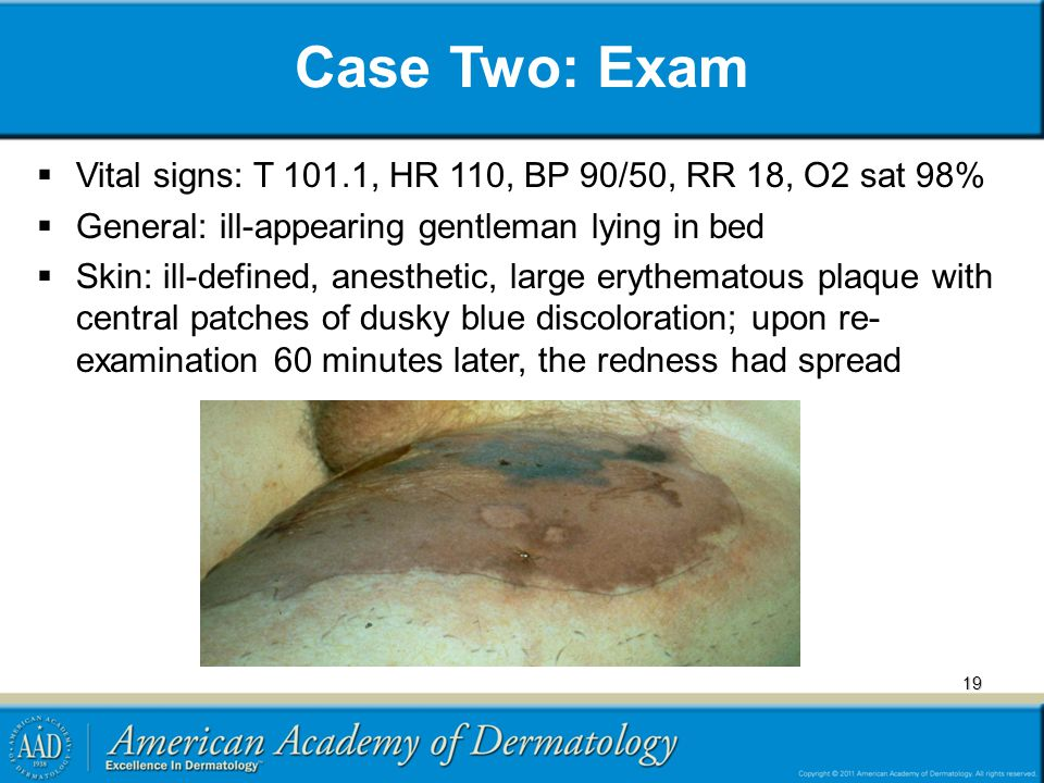Case Two: Exam Vital signs: T 101.1, HR 110, BP 90/50, RR 18, O2 sat 98% General: ill-appearing gentleman lying in bed.