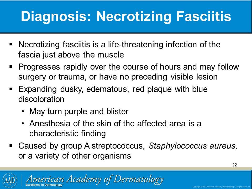 Diagnosis: Necrotizing Fasciitis