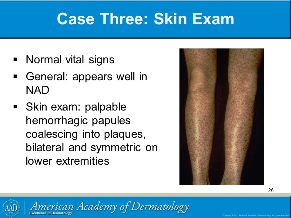Case Three: Skin Exam Normal vital signs General: appears well in NAD