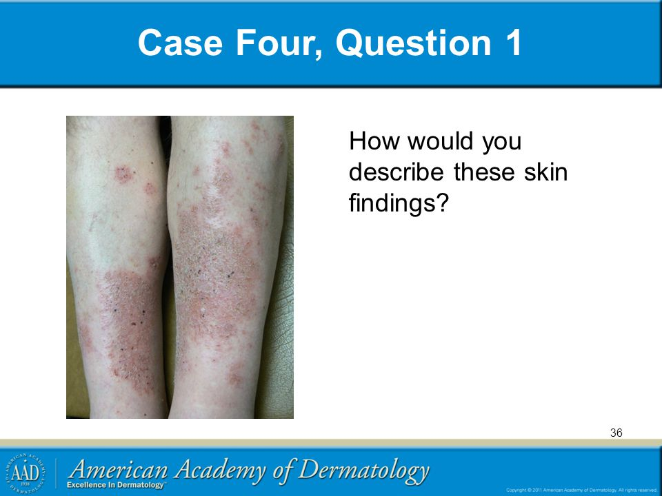 Case Four, Question 1 How would you describe these skin findings