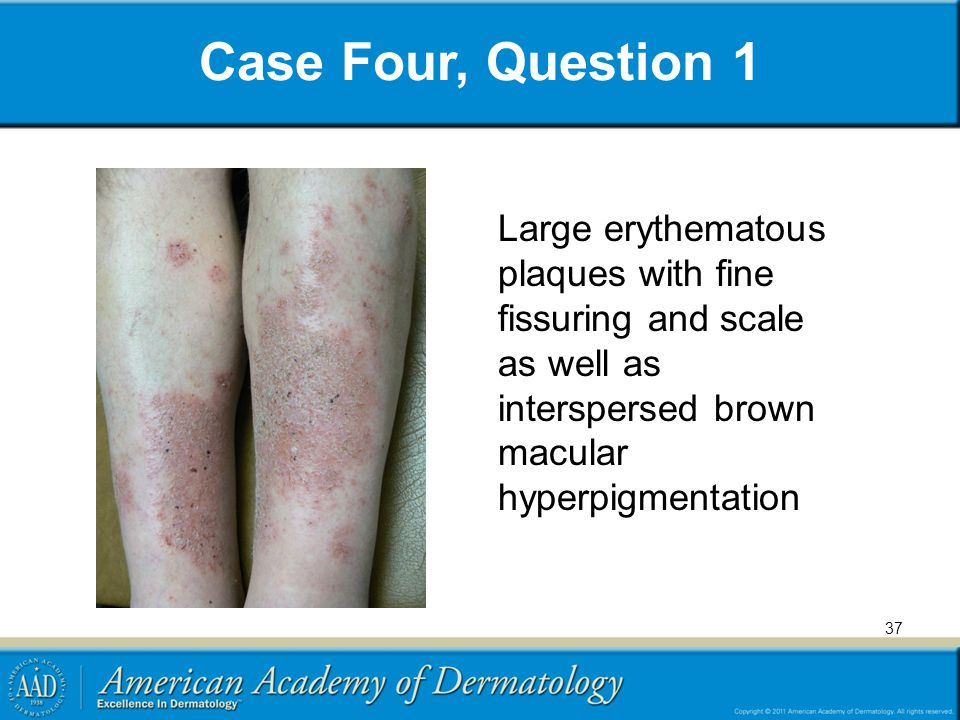 Case Four, Question 1 Large erythematous plaques with fine fissuring and scale as well as interspersed brown macular hyperpigmentation.