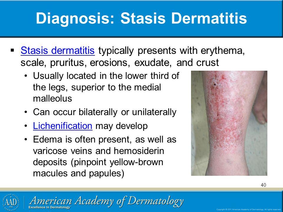 Diagnosis: Stasis Dermatitis